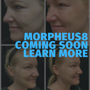 Morpheus8 coming soon. Learn more.