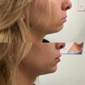 Undereye filler with