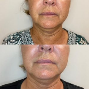 lumecca ipl before and afters
