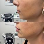 Another lovely result with dermal fillers for the chin
