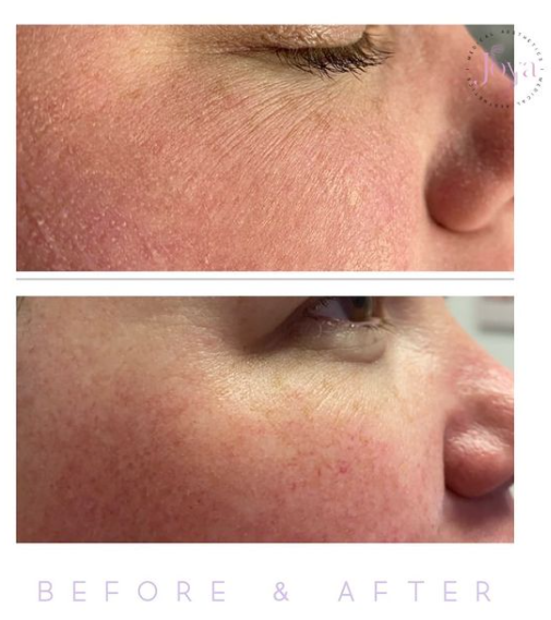 Oxygeneo before and after