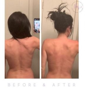 truSculpt iD before and afters 2